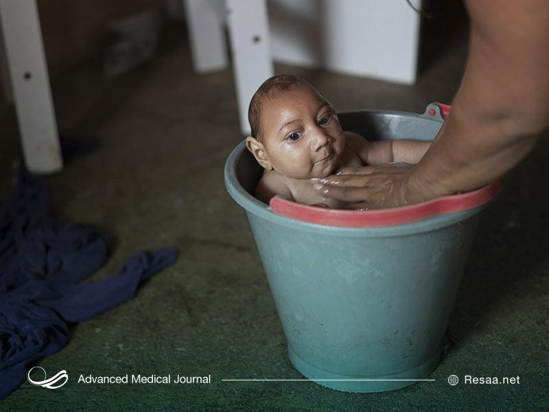 کودک مبتلا به میکروسفالی