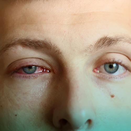قرمزی چشم در کرونا