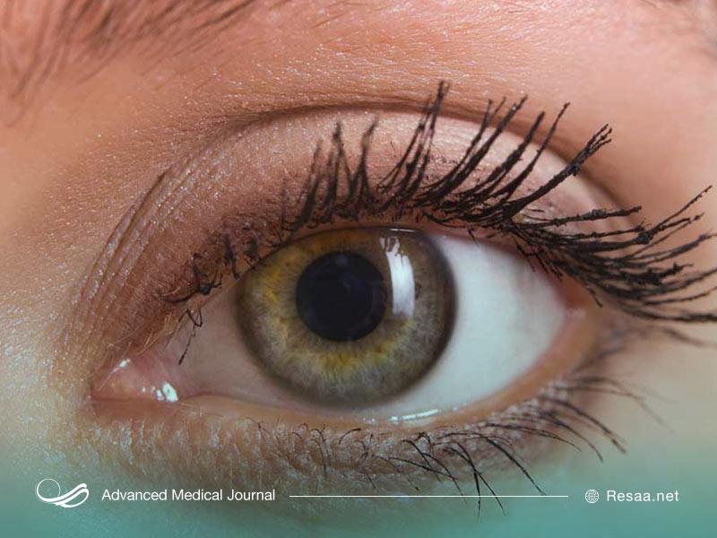 بیماریهای چشمی