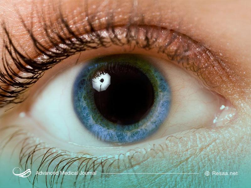 نشانه های بیماری چشمی