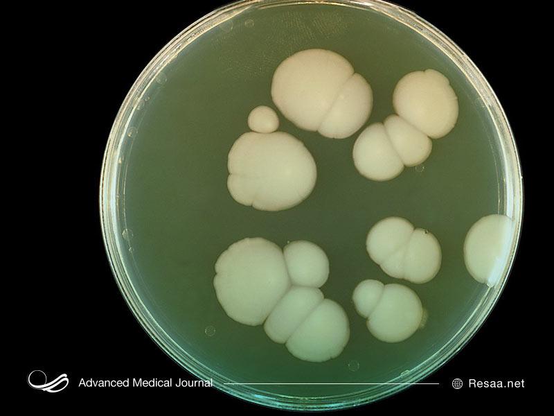 عفونتهای باکتریایی