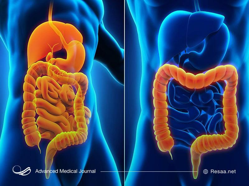 برای تشخیص بیماری کرون پزشک نتایج آزمایشات شما را بررسی میکند.