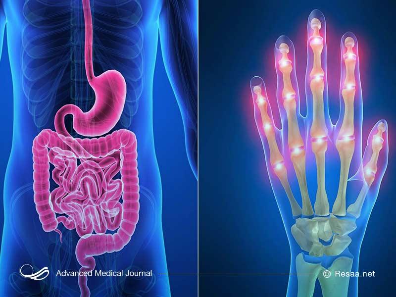عمل جراحی میتواند یکی از گزینههای درمانی برای بیماری کرون باشد.