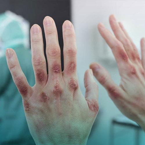 بیماری پوستی درماتیت