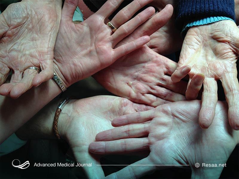 بیماری دوپویترن سبب ضخیم شدن پوست کف دست می شود.