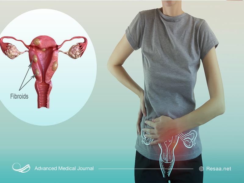 فیبرومها به شکل تودههای عضلانی در رحم بروز میکنند.
