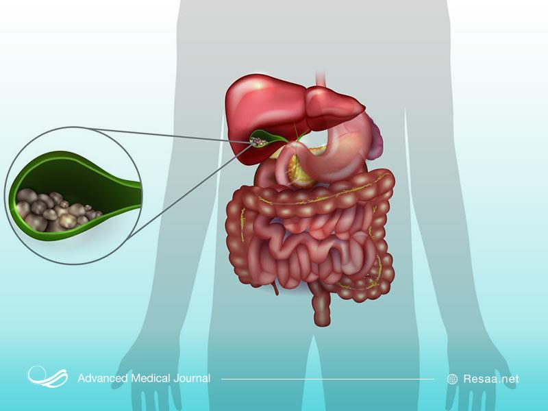 تشخیص بیماری گوچر