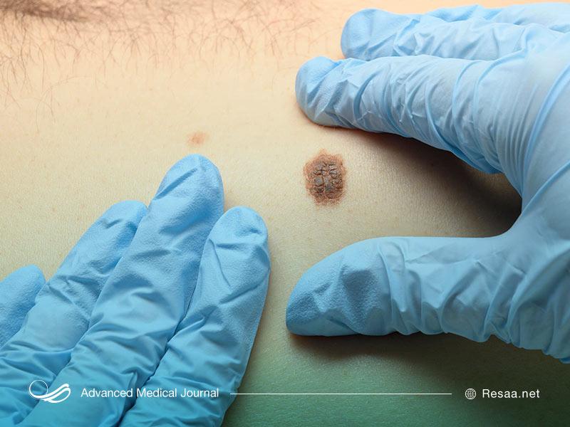 ملانوما جدیترین نوع سرطان پوست میباشد.