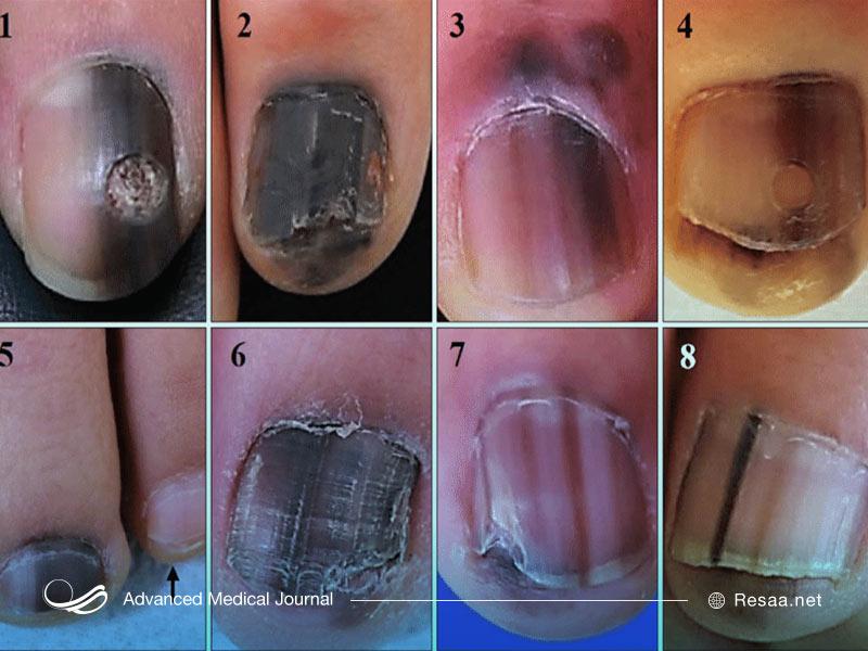 ملانوما روی ناخنها نیز اثر میکذارد و سبب تغییر رنگ آنها میشود.