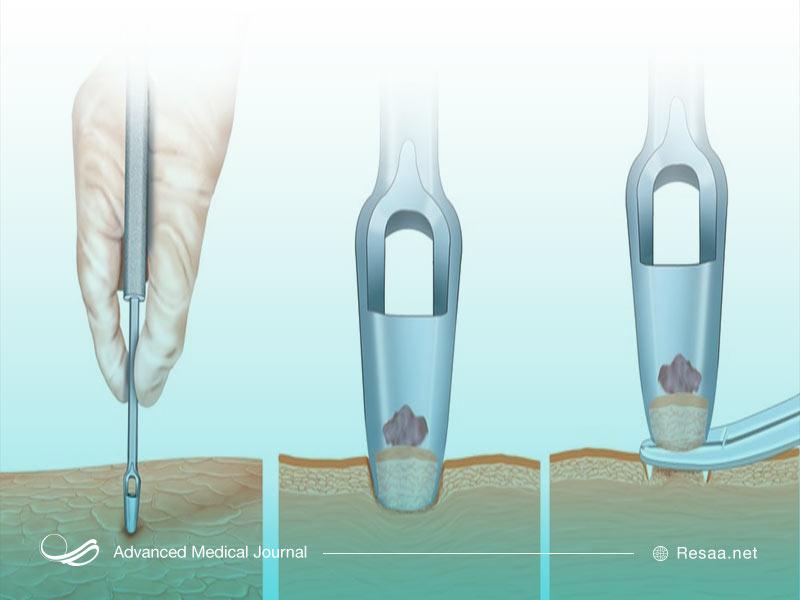 برای تشخیص ملانوما از بافت بدن نمونهبرداری میشود.
