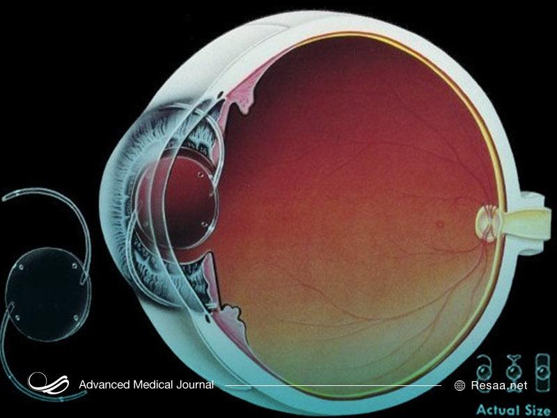 میتوان از لنزهای داخل چشمی نیز برای درمان نزدیک بینی استفاده کرد.