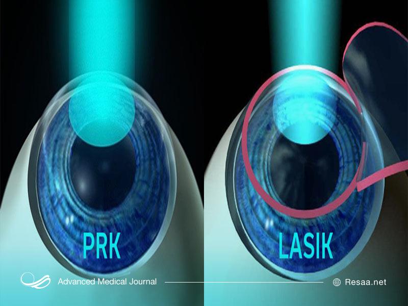 در روش prk با لیزر سطح قرنیه را تغییر میدهند.