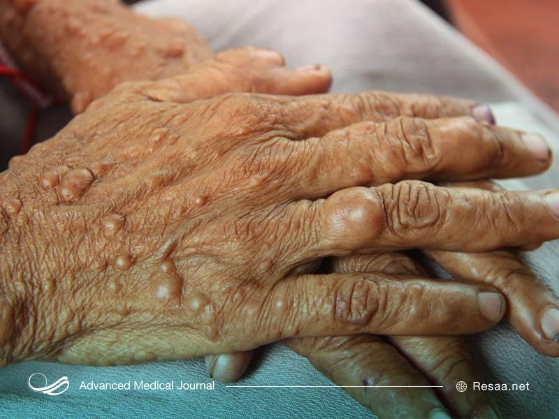 نوروفیبروماتوز نوعی بیماری پوستی است.