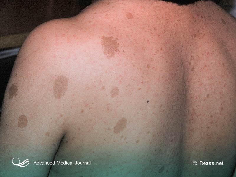 نوروفیبروماتوز نوعی بیماری ژنتیکی عصبی است.