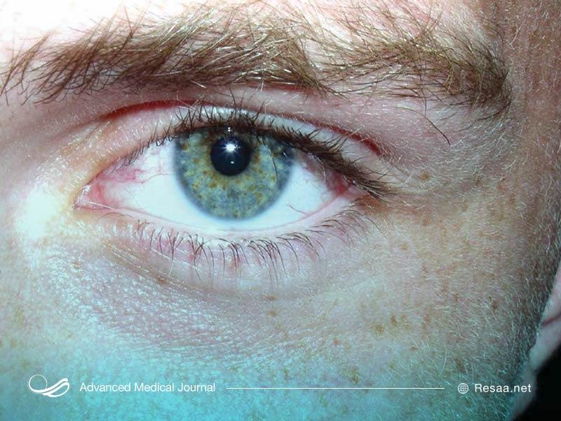 این بیماری میتواند روی اندام مختلفی تاثیر بگذارد