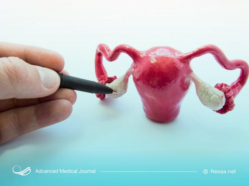 پیچ خوردگی تخمدان سبب درد در ناحیه شکم میشود.