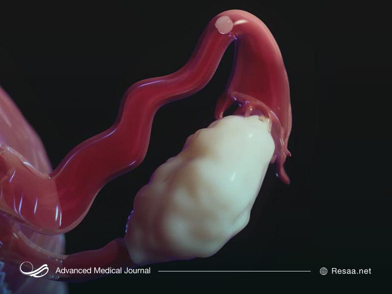سونوگرافی میتواند پیچ خوردگی تخمدان را نشان دهد.