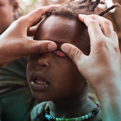 بیماری تراخم یا تراکوما چیست