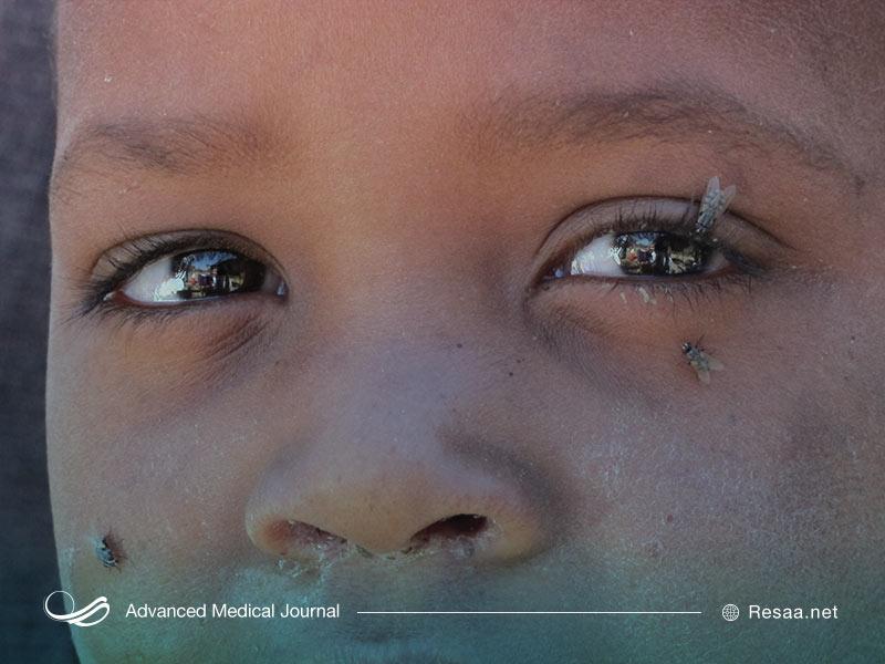 تراکوما آسیب جدی به چشمها وارد میکند.