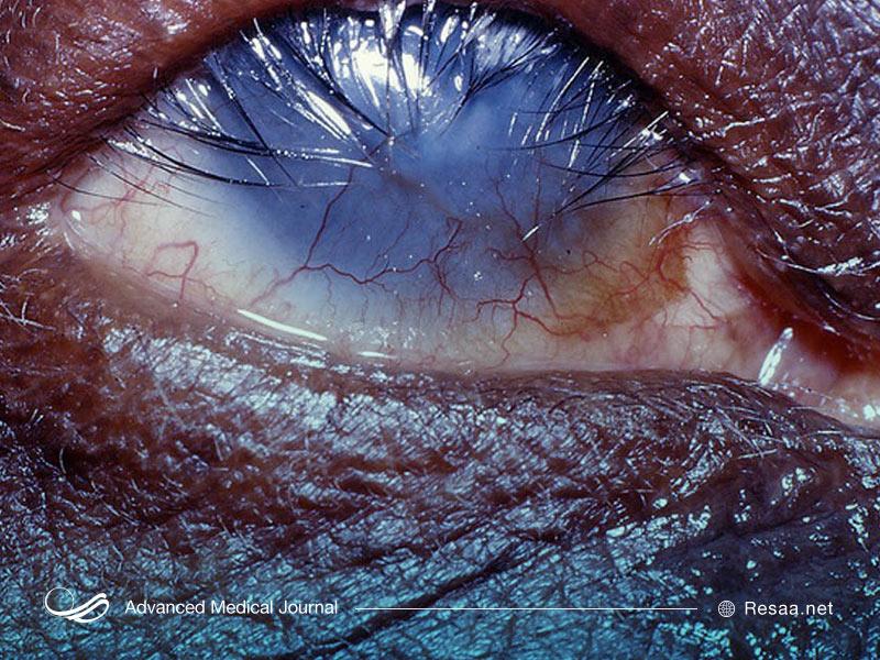 تراخم سبب کاهش بینایی میشود.