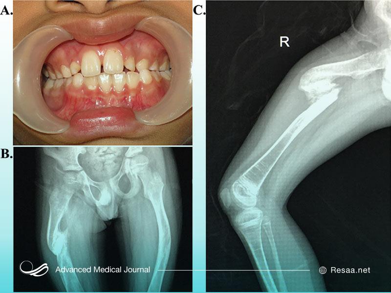 بیماری استخوان شکننده