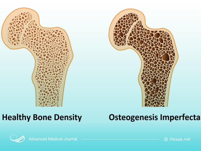 مقایسه استخوان سالم و دچار اختلال