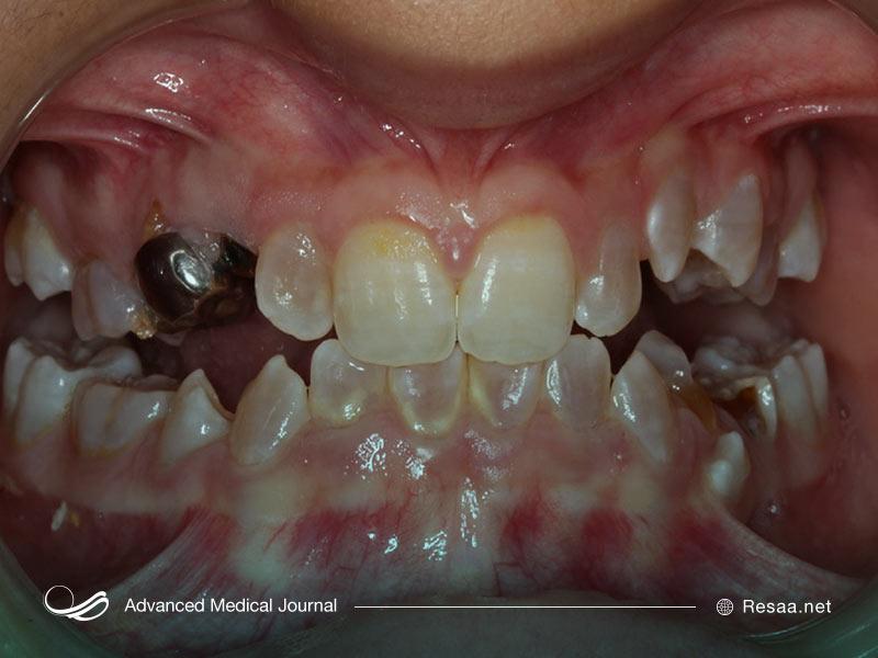 تصویر دندانهای فرد مبتلا به استخوان زایی