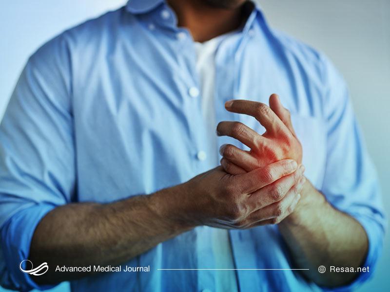 بیماری دیستونی سبب بروز اختلالات حرکتی میشود.